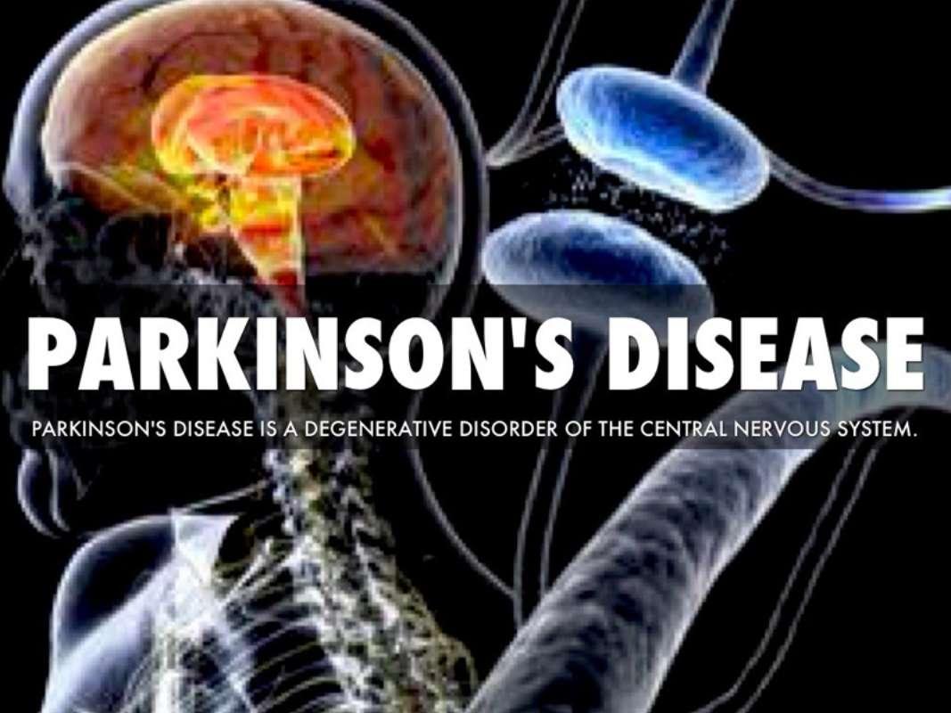 Parkison's Disease