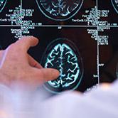 Asian Centre for Neurology & Neurosurgery