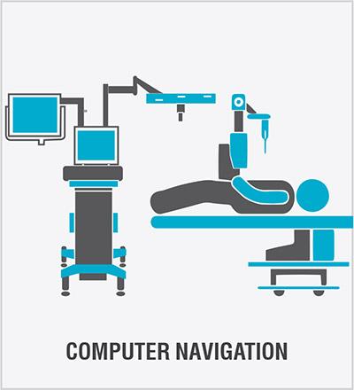 Computer Navigation